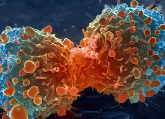 83307904_m1320644-lung_cancer_cell_division_sem-spl
