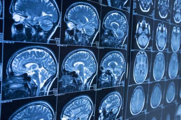 Cerveaux 600x398