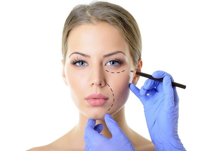 Chirurgie Estethique