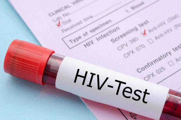 HIV TEST 600x398