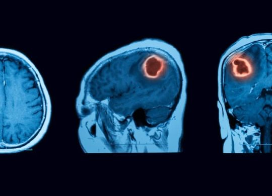 benign-brain-tumor-scan