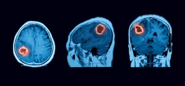 Benign Brain Tumor Scan 600x280